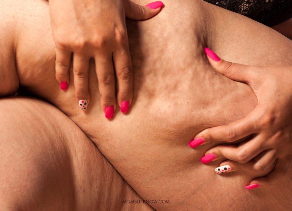 Exercise Is the Answer for Your Cellulite Problems
