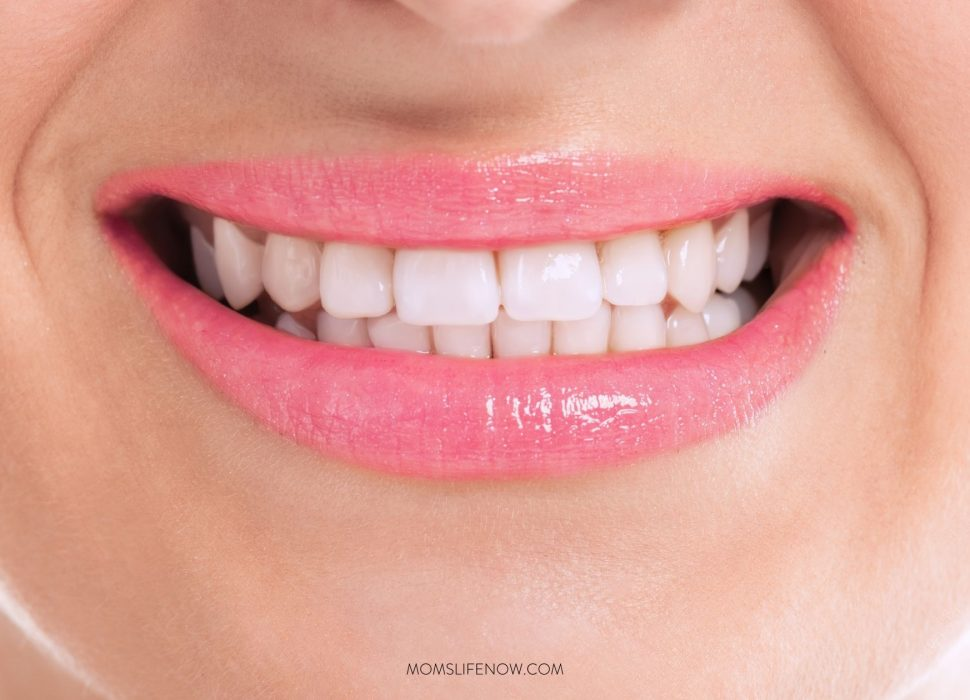 The Secret Method To Whitening Your Teeth