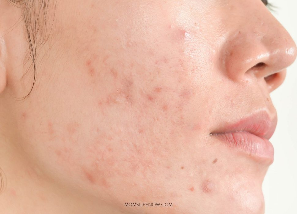 Treatments For Acne And Acne Scars That You Need ASAP